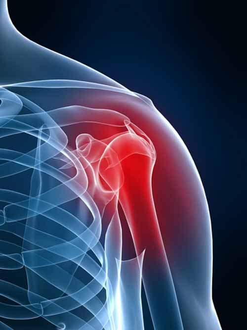 kireçlenme omuz ağrısı omuz sıkışması