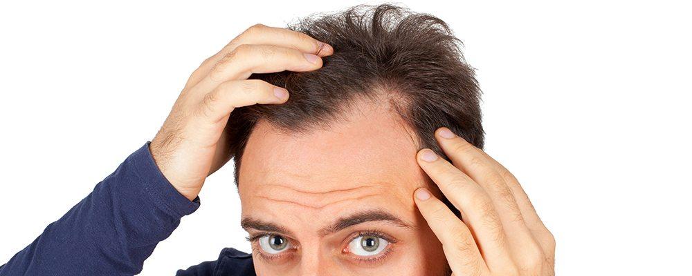 Saç dökülmesi neden olur? Nasıl önlenir? saç ekimi nasıl yapılır prp mezoterapi