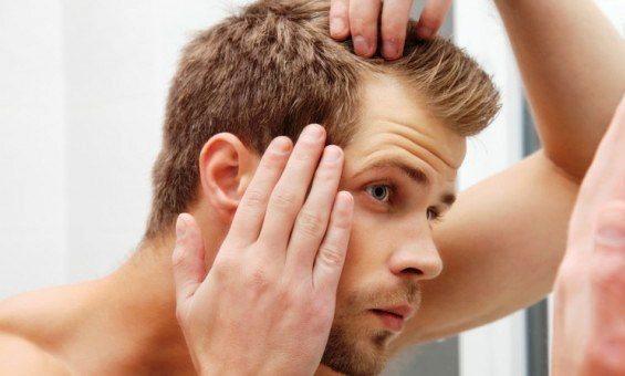 Saç dökülmesi neden olur? Nasıl önlenir? saç ekimi nasıl yapılır prp mezoterapi erkeklerde