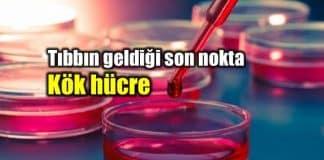 Kök hücre tedavisi: Tıbbın geldiği son nokta!