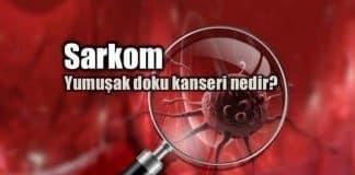 Sarkom: Yumuşak doku kanseri belirtileri ve tedavisi