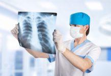 Verem Nedir? Hastalığın 8 belirtisine dikkat!