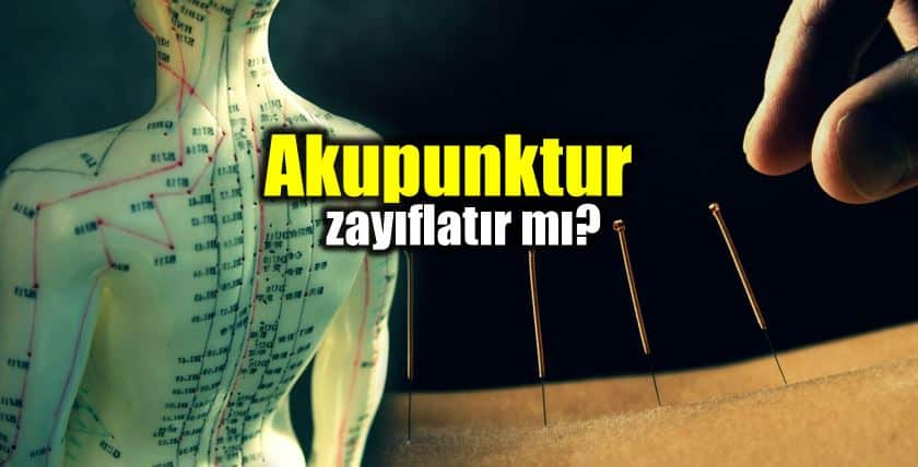 Akupunktur nedir? Akupunktur zayıflatır mı?