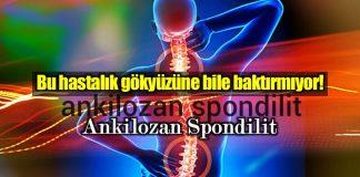 Ankilozan Spondilit nedir? Belirtileri ve tedavisi nasıl?