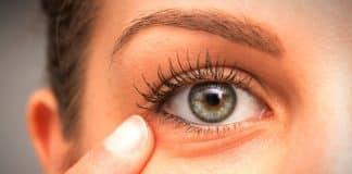 Göz altı çevresi yaşlanma nedenleri: PRP ve mezoterapi nedir?