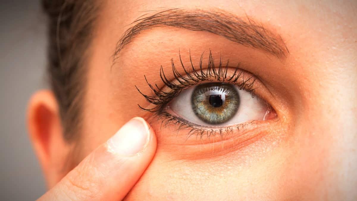 Göz altı morluk ve yaşlanma nedenleri: PRP ve mezoterapi nedir?