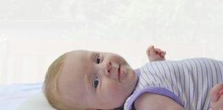 Bebeğinizin kafasında şekil bozukluğu varsa…