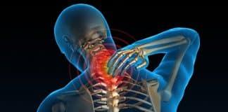 Boyun fıtığı nedir? Boyun ağrısına ne iyi gelir?