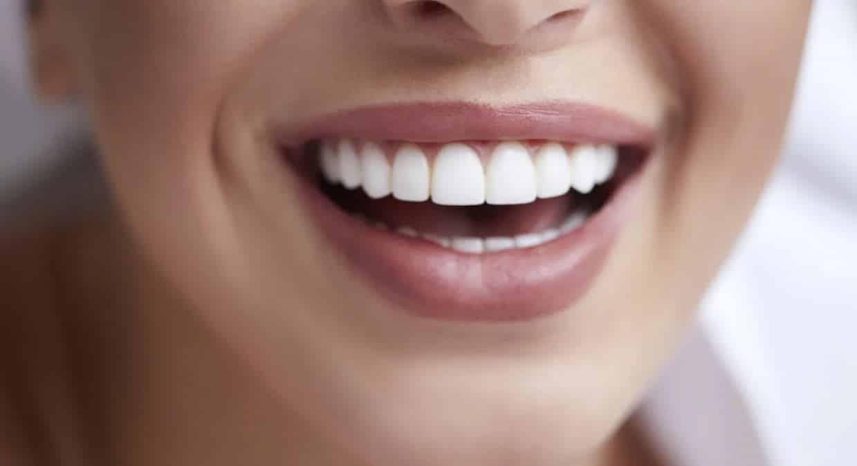 ağrısız diş beyazlatma