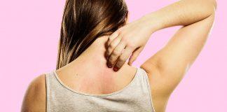Nikel alerjisi nedir? Belirtileri neler? İmitasyon takılara dikkat!