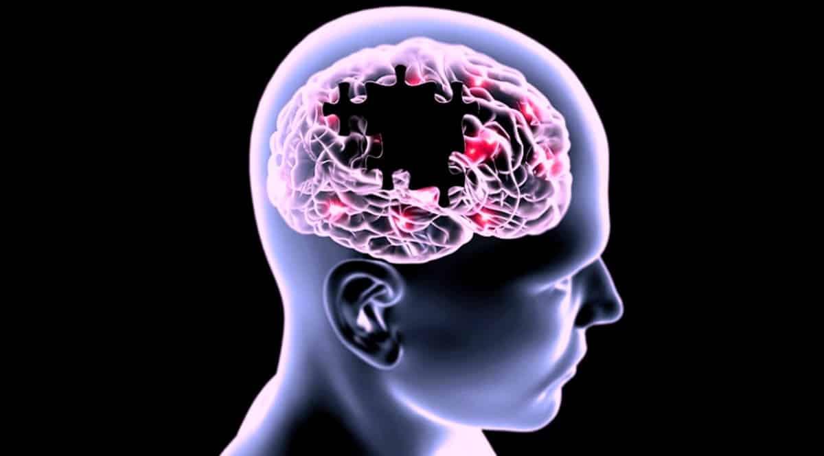 Alzheimer hastalığı ile ilgili 10 mit