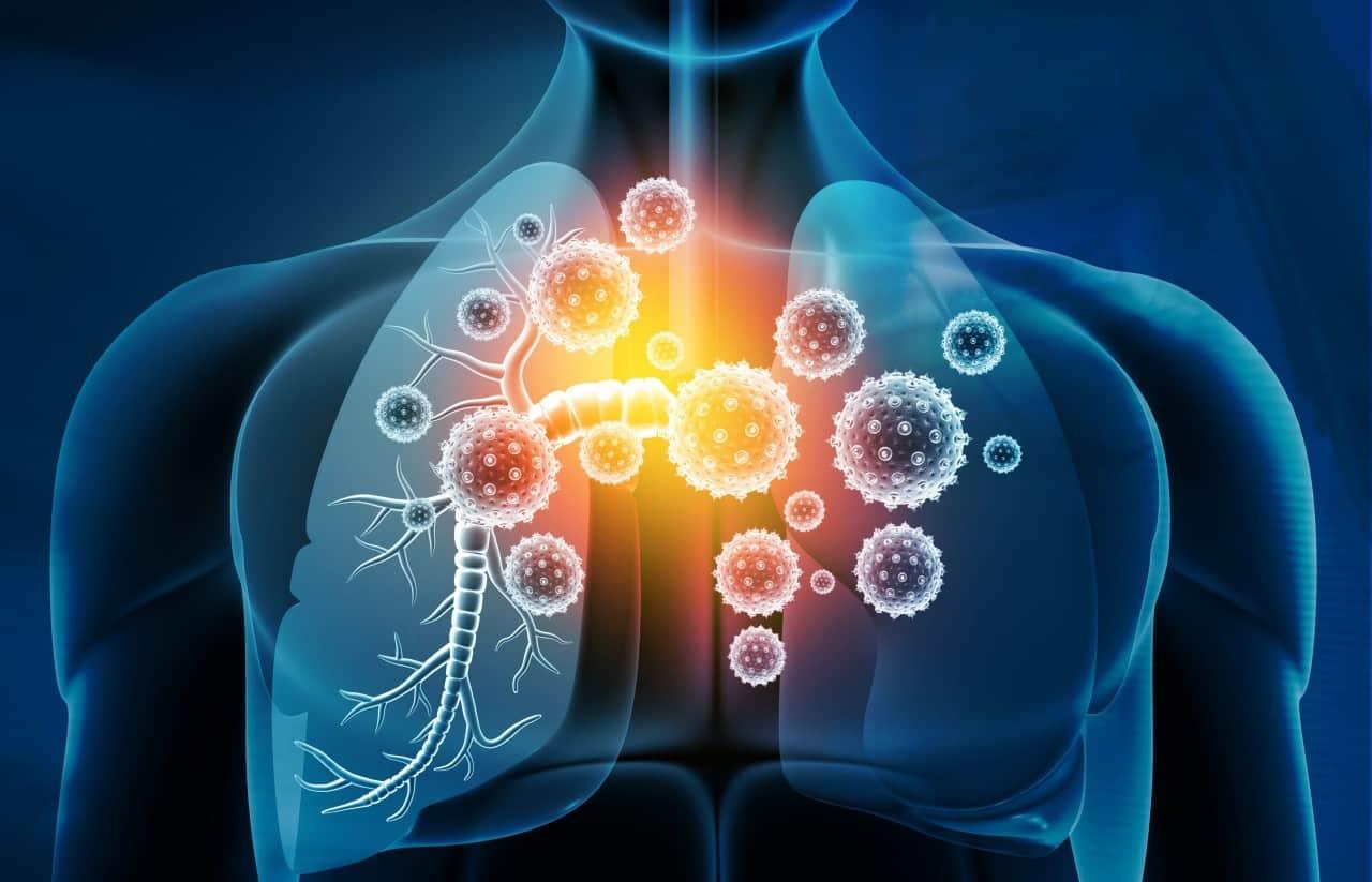 Bağışıklık sisteminin zayıfladığı nasıl anlaşılır? Bu belirtilere dikkat!