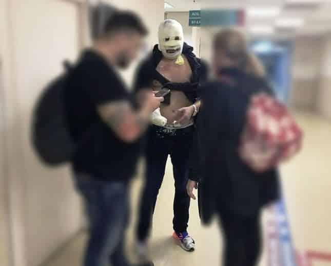 nusret Çek kadın turist ağır yaralandı
