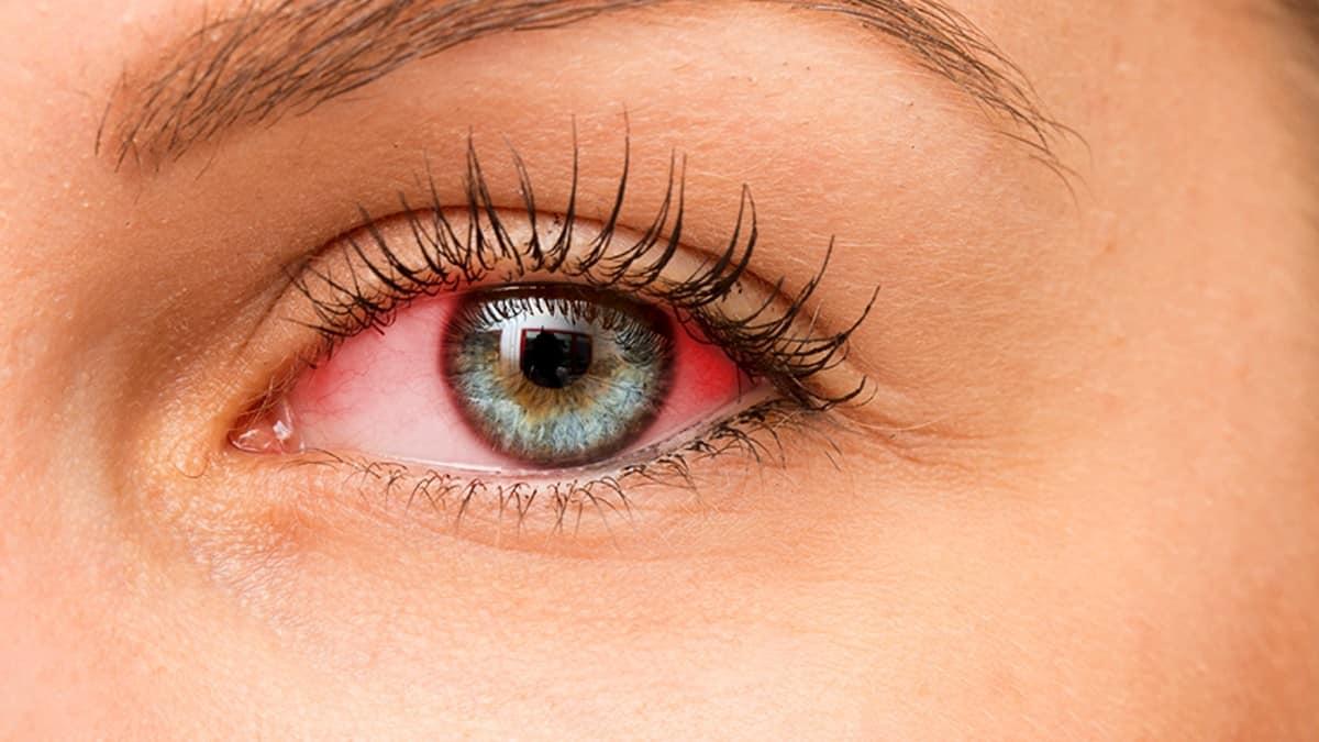 Üveit nedir? Göz sağlığınızı erken tanı ile koruyun!