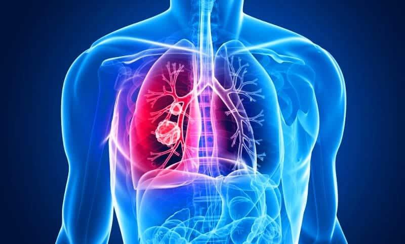 Mesothelioma Cancer Mezotelyoma akciğer zarı kanseri