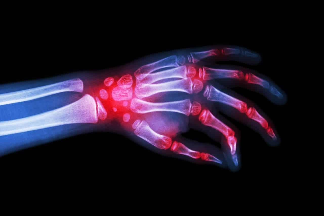 İltihaplı eklem romatizması Romatoid Artrit