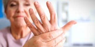 Romatoid artrit nedir? Belirtileri neler? Tanısı nasıl konur?