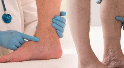 bacakta damar tromboz