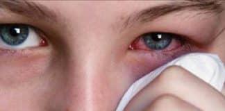 göz enfeksiyonu