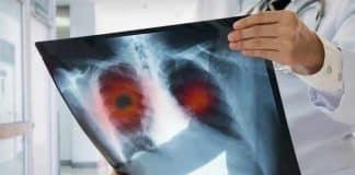 Akciğer kanseri belirtileri neler? Nasıl tedavi edilir?