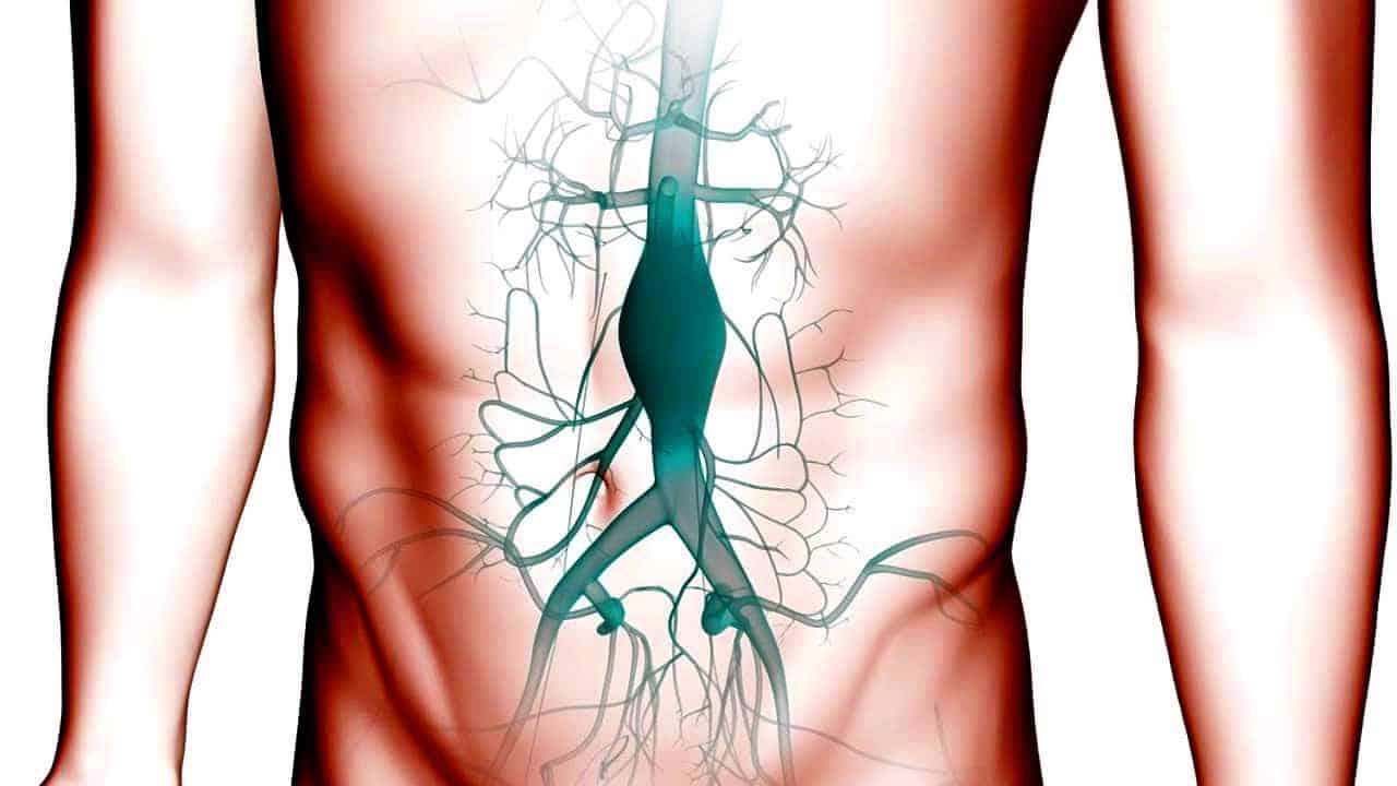 Aort Anevrizması nedir? Belirtileri neler?