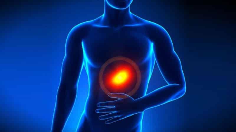 Reflü hastalığına karşı 5 etkili öneri