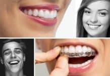 Şeffaf aparey (diş teli) tedavisi nedir? Nasıl yapılır?