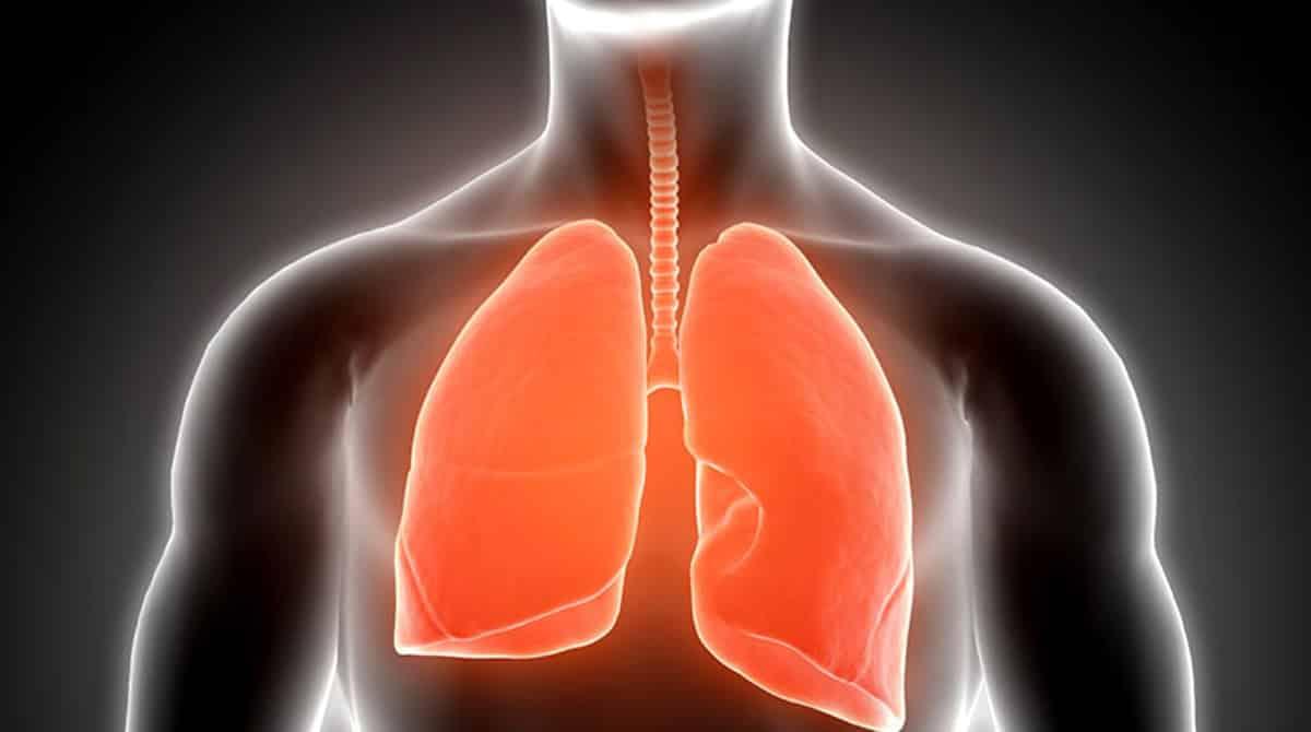 Akciğer kanseri erken teşhisi için bilgisayar tomografisi