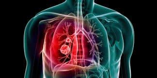 Zatürre ve grip olmamak için 9 etkili öneri nedir?