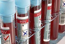 hiv testi HIV virüsü taşıyanlar çocuk sahibi olabilir mi?
