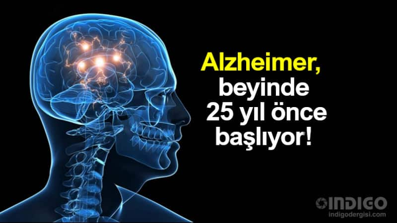 Alzheimer beyinde25 yıl öncesinde başlıyor!
