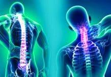 Fibromiyalji nedir? Belirtileri neler?
