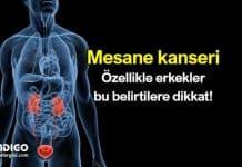 Mesane tümörü nedir? Mesane kanseri belirtileri neler?