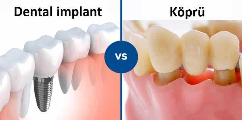 dental implant ile köprü farkı