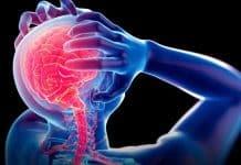 Migren ile başa çıkmanın etkili yolları
