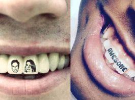 Diş dövmesi: Dişte yeni trend Tattoooth nasıl yapılır?