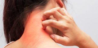 Kaşıntı neden olur? Kaşıntıya karşı 10 etkili yöntem