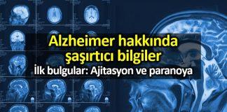 Sakin bir hayat, Alzheimer hastalığı riskini artırıyor!