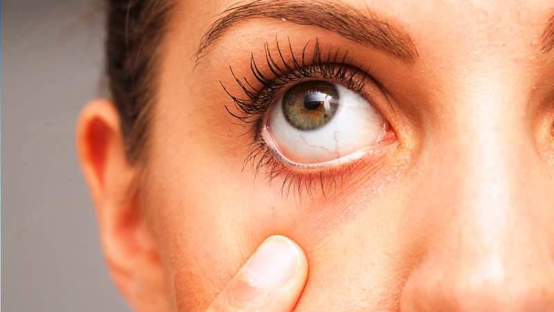 Göz kuruluğu sorunu görme kaybına neden olabiliyor!