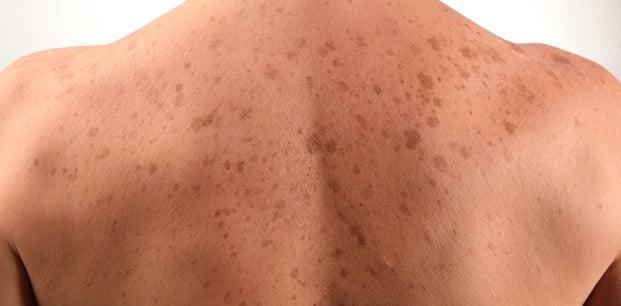 güneş lekeleri ben benler cilt kanseri melanom