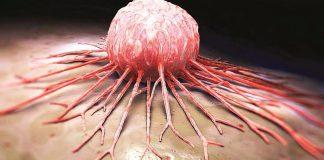Kronik Miyeloid Lösemi (kan kanseri) nedir? Belirtileri ve tedavisi