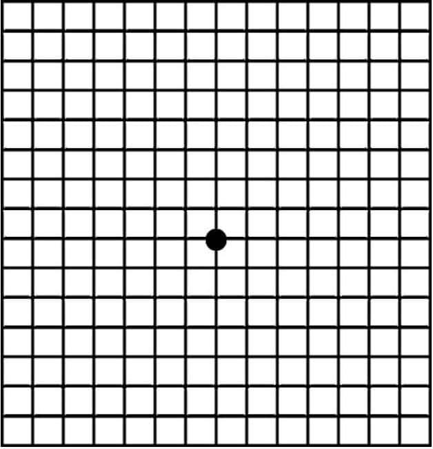 Amsler Grid Testi (Çizgili Kare Testi)