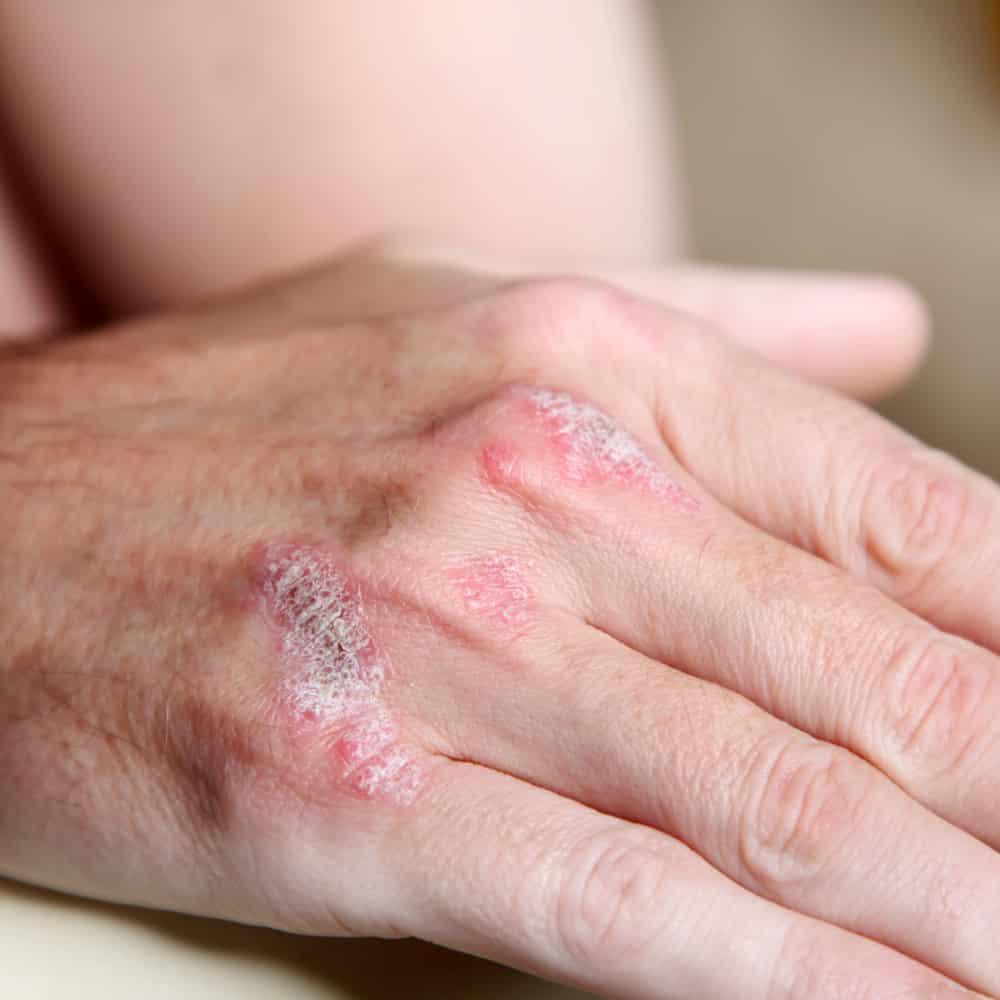 Sabahları daha belirgin olan eklemde ağrı ve şişlik, sedef romatizmasının en önemli belirtileri