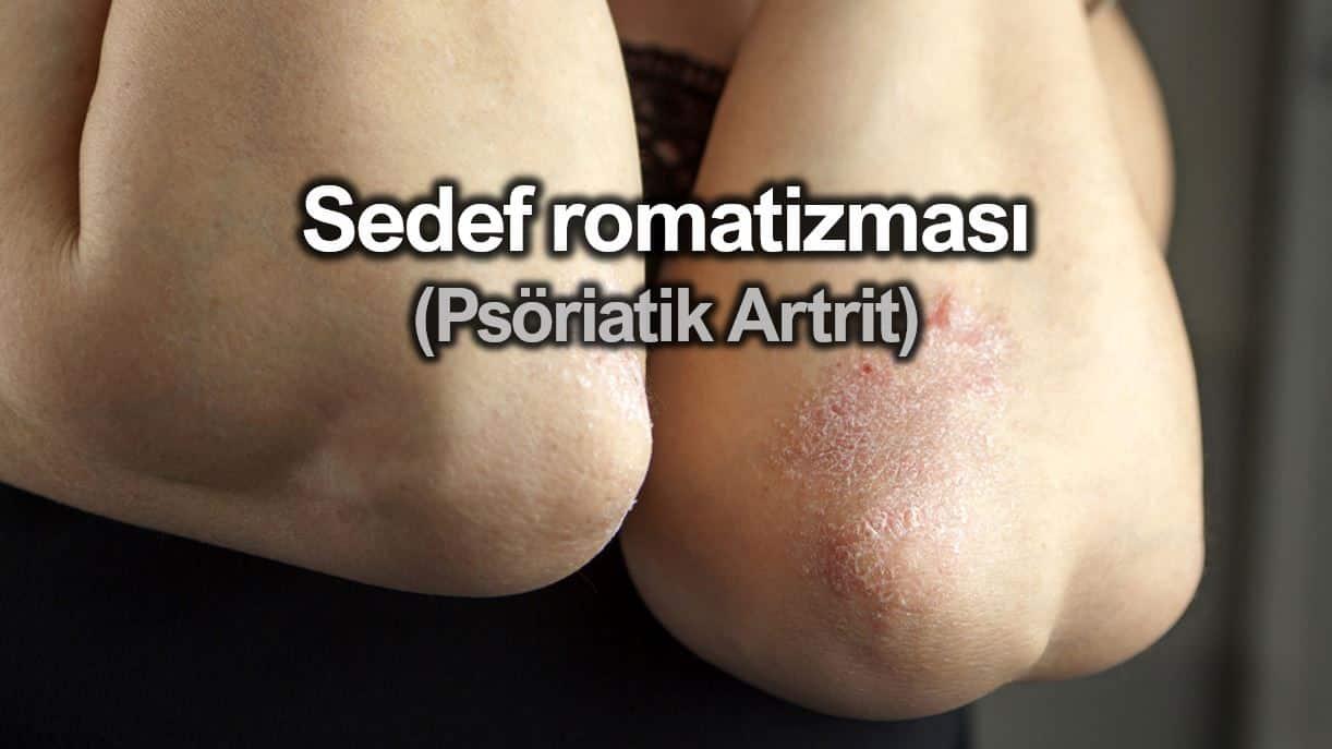 Sedef romatizması (Psöriatik Artrit) nedir? Belirtileri neler?