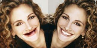 Estetik diş uygulamaları yüz simasını güzelleştiriyor!