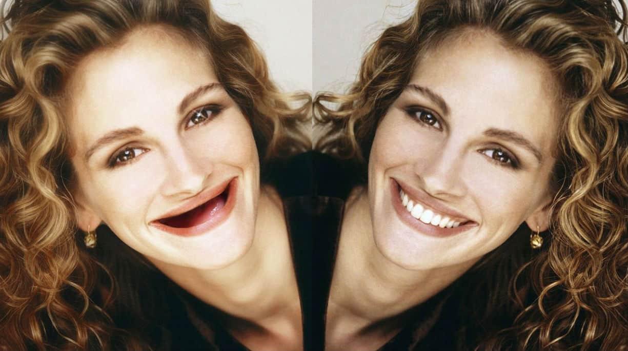 gülüş tasarımı nedir estetik diş uygulamaları yüz simasını güzelleştiriyor!
