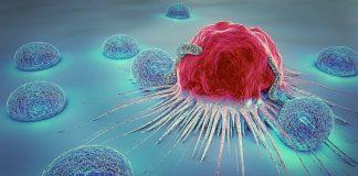 Kolon kanseri riskini azaltan 6 öneri