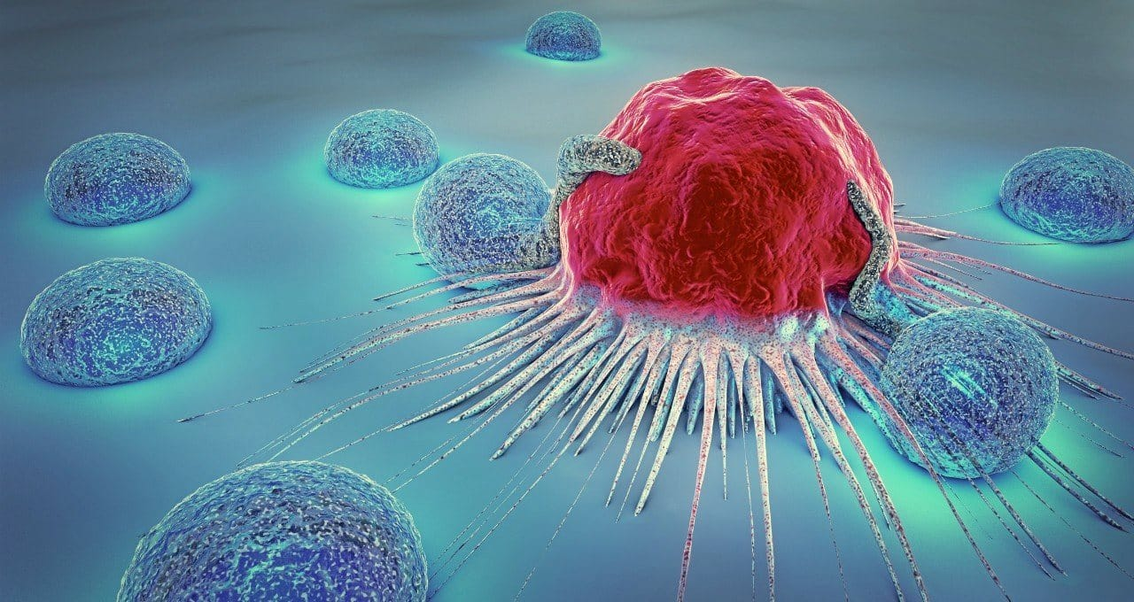Kolon (kalın bağırsak) kanseri: Dışkıdan kan geliyorsa dikkat!