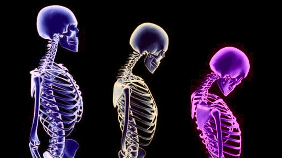Osteoporoz nedir? Kemik erimesinden korunmak için 6 öneri