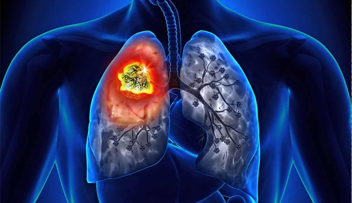 Akciğer kanserinin 4 önemli öncül belirtisi nedir?